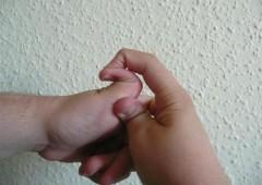 Ehler-Danlos syndrom